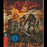 Kreator - Dying Alive (CD1) '2013